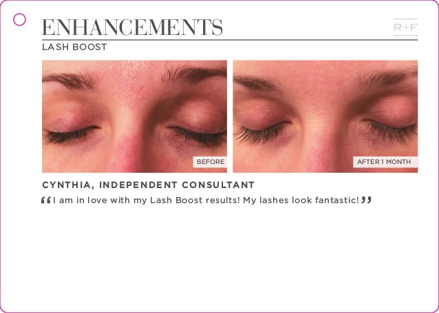 480a9cc844b REAL RESULTS; 66. BEFORE AFTER 1 MONTH ENHANCEMENTS LASH ...