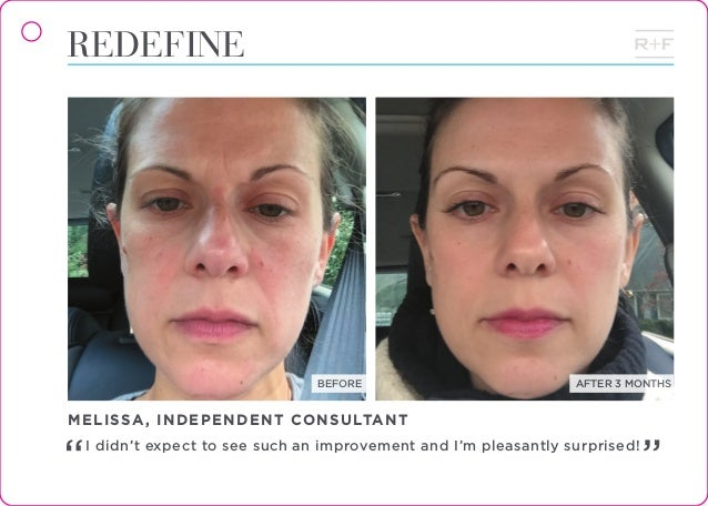 Rodan Fields Before And After Flip Book Vol 8