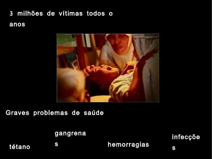 Mutilação do clitóris escandaliza o mundo  o clitoclatismo cultural 10