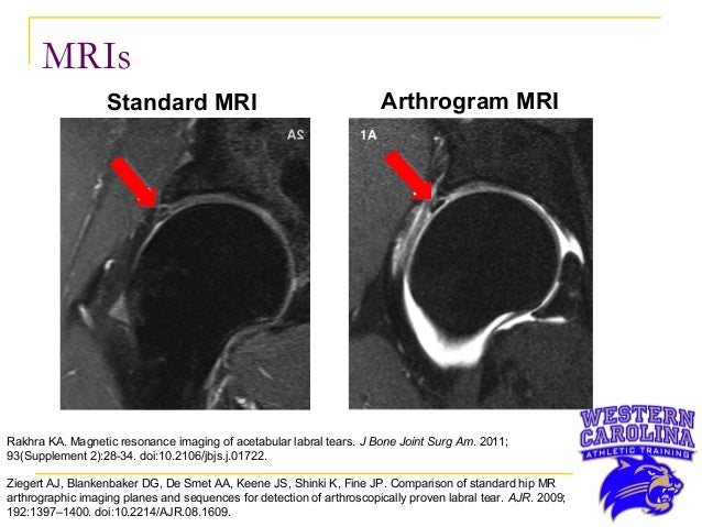 Right Hip Labral Tear In A 22 Year Old Collegiate Male