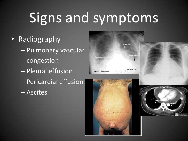pulmonary edema disease Pulmonary edema (hape) is a term used when there is a edema in the lungs the area outside the small blood vessels in the lungs is occupied by tiny air sacs called alveoli.