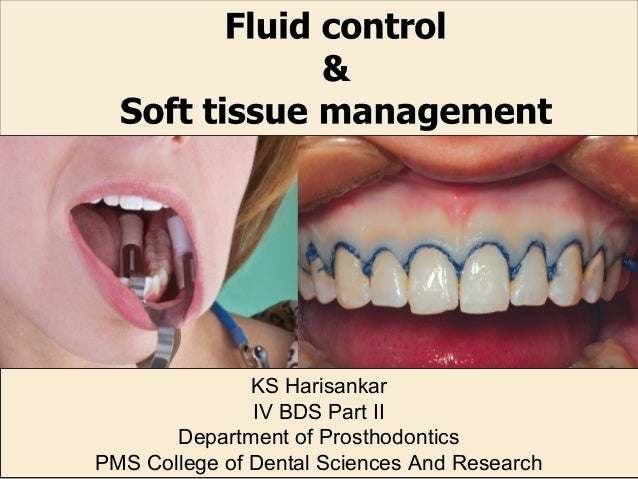 KS Harisankar IV BDS Part II Department of Prosthodontics PMS College of Dental Sciences And Research