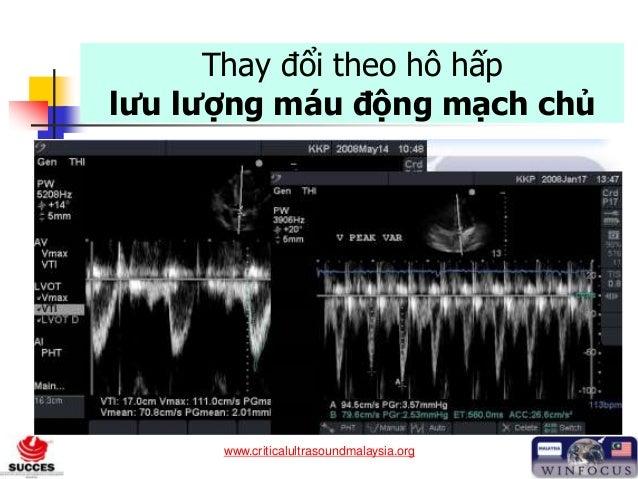 www.criticalultrasoundmalaysia.org Thay đổi theo hô hấp lưu lượng máu động mạch chủ