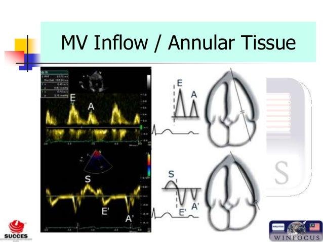 www.criticalultrasoundmalaysia.org MV Inflow / Annular Tissue