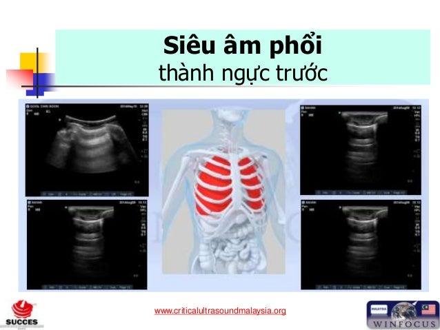 www.criticalultrasoundmalaysia.org Siêu âm phổi thành ngực trước