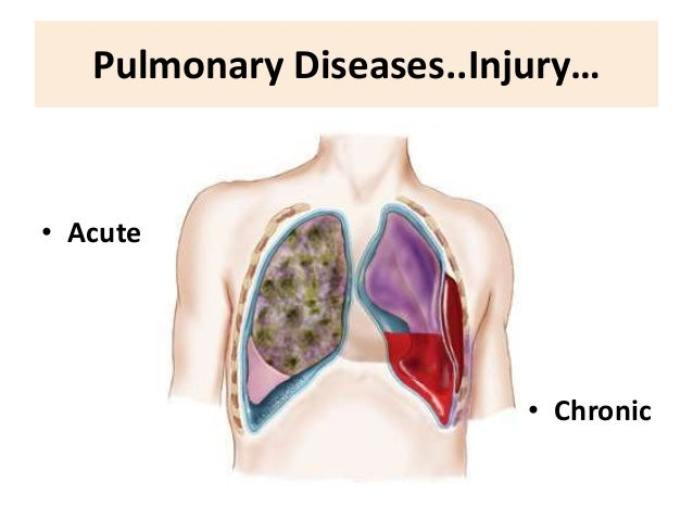 Pulmonary Diseases  >> Fluid Therapy In Lung Diseases