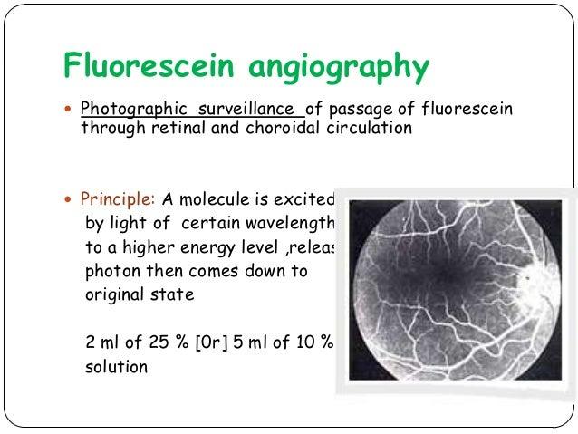 Fluorescein In Ophthalmology