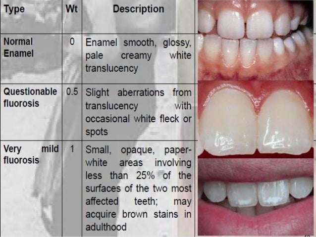 Natural Treatment For Fluorosis