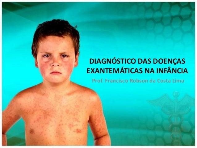 DIAGNÓSTICO DAS DOENÇASEXANTEMÁTICAS NA INFÂNCIA Prof. Francisco Robson da Costa Lima