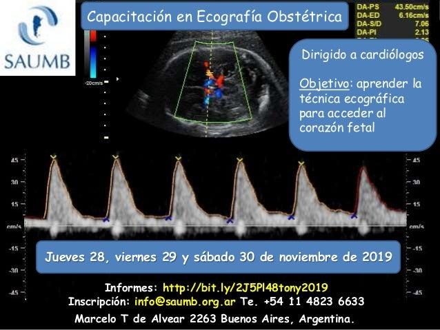 Capacitaci�n en Ecograf�a Obst�trica Marcelo T de Alvear 2263 Buenos Aires, Argentina. Informes: http://bit.ly/2J5Pl48tony...