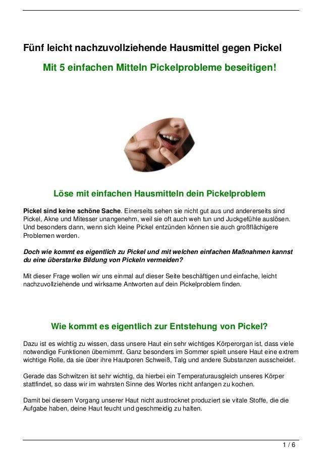 Fünf leicht nachzuvollziehende Hausmittel gegen Pickel      Mit 5 einfachen Mitteln Pickelprobleme beseitigen!          Lö...