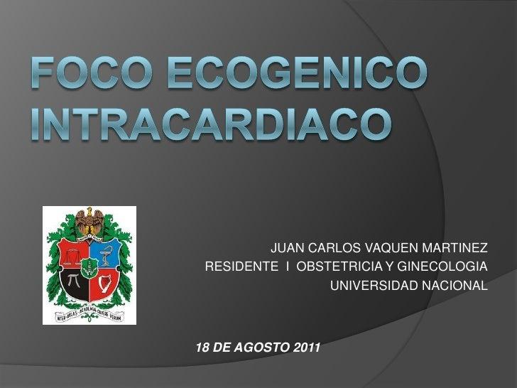 FOCO ECOGENICO INTRACARDIACO<br />JUAN CARLOS VAQUEN MARTINEZ<br />RESIDENTE  I  OBSTETRICIA Y GINECOLOGIA<br />UNIVERSIDA...
