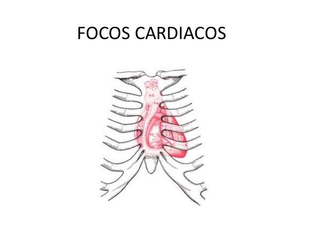 FOCOS CARDIACOS