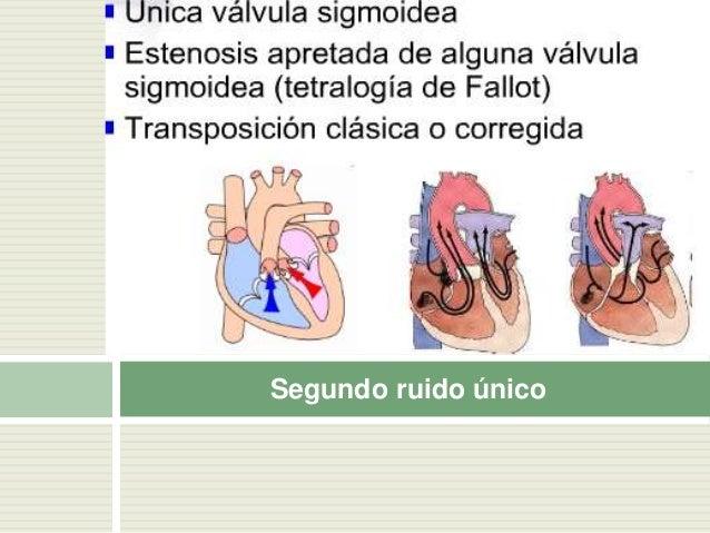 Significado del cuarto ruido  Final de la diástole (presis tole) = choque de la sangre con el endocardio ventricular.  F...