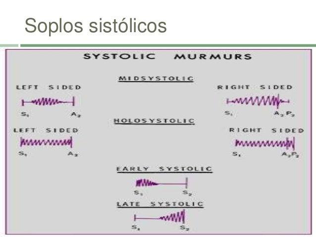 Soplos Proto-diastólicos Aórtico y Pulmonar