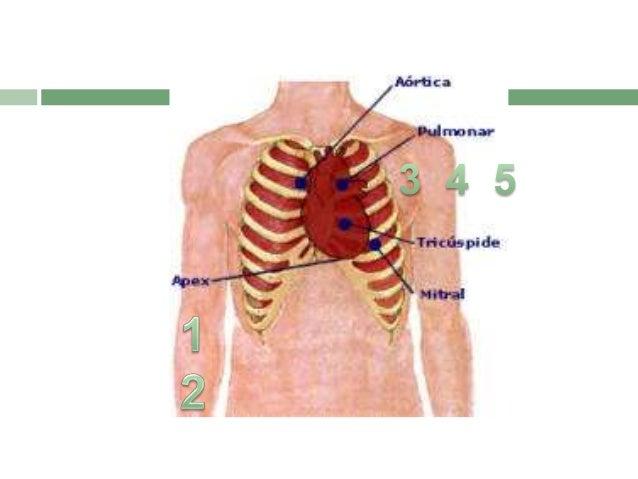 Auscultación de ruidos cardiacos  Permite identificar fenómenos anormales producidos por alteraciones patológicas , así c...