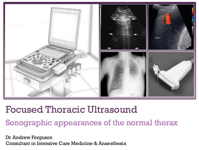 +  Focused Thoracic Ultrasound Sonographic appearances of the normal thorax Dr Andrew Ferguson Consultant in Intensive Car...