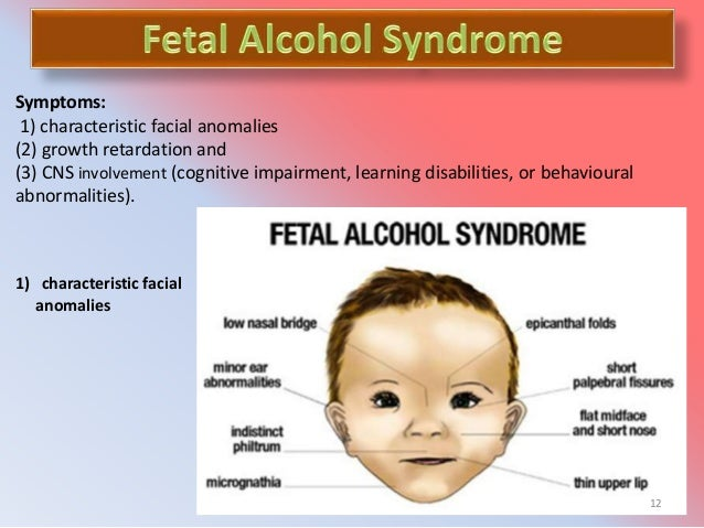 fetal-alcohol-spectrum-disorders-facial-pictures