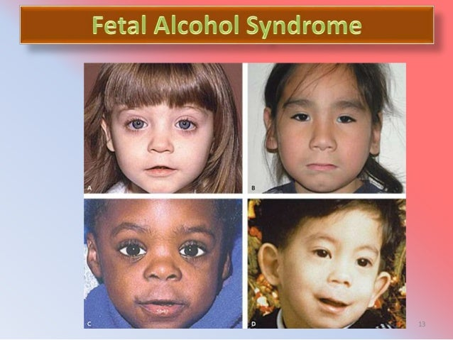 the physical characteristics of fetal alcohol syndrome Fetal alcohol syndrome (fas) definition, causes, short/long-term effects in babies, signs, facial features (eyes, nose), treatment, statistics, pictures.