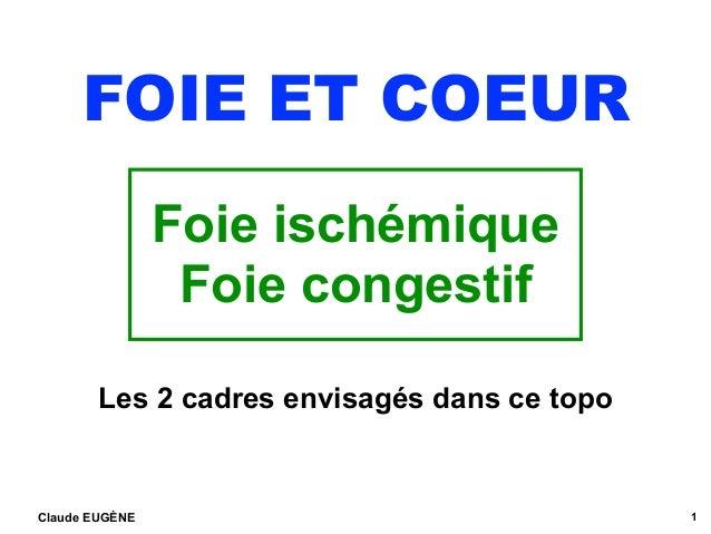FOIE ET COEUR Foie ischémique Foie congestif Claude EUGÈNE 1 Les 2 cadres envisagés dans ce topo