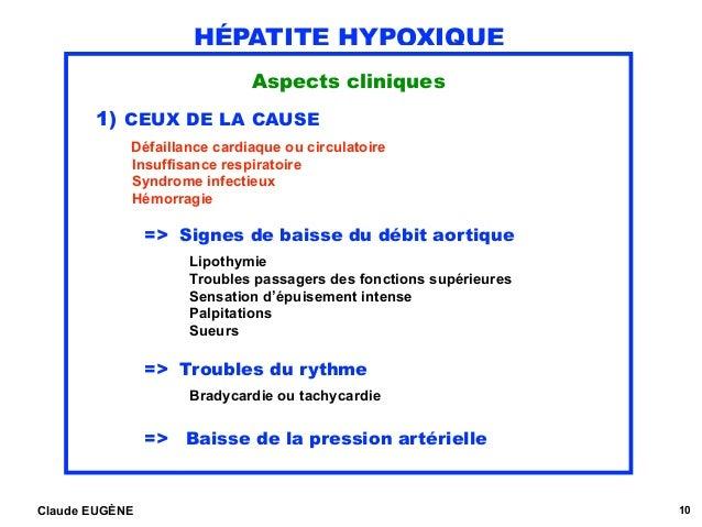 HÉPATITE HYPOXIQUE Aspects cliniques 1) CEUX DE LA CAUSE  Défaillance cardiaque ou circulatoire Insuffisance respiratoir...