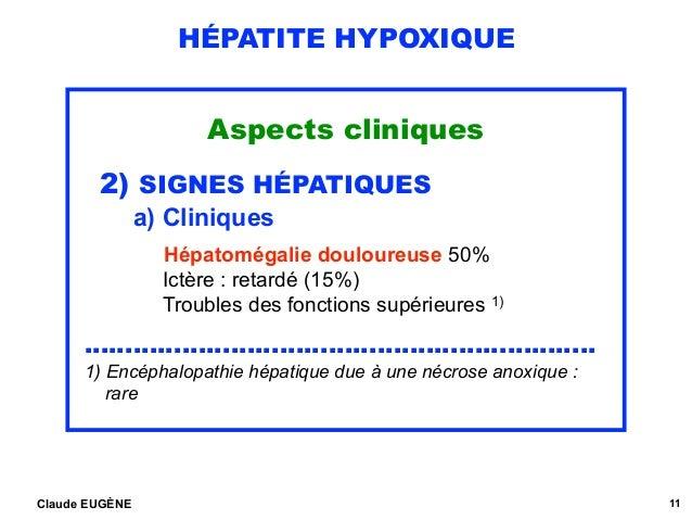 HÉPATITE HYPOXIQUE Aspects cliniques 2) SIGNES HÉPATIQUES a) Cliniques  Hépatomégalie douloureuse 50% Ictère : retardé (...