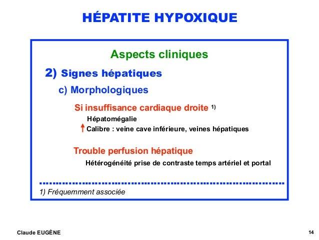 HÉPATITE HYPOXIQUE Aspects cliniques 2) Signes hépatiques c) Morphologiques  Si insuffisance cardiaque droite 1) Hépatomé...