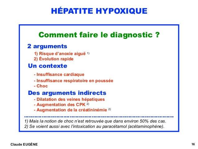 HÉPATITE HYPOXIQUE Comment faire le diagnostic ? 2 arguments 1) Risque d'anoxie aiguë 1) 2) Évolution rapide Un contexte...