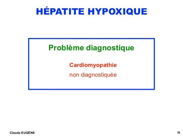 HÉPATITE HYPOXIQUE Problème diagnostique Cardiomyopathie non diagnostiquée Claude EUGÈNE 18