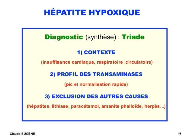 HÉPATITE HYPOXIQUE Diagnostic (synthèse) : Triade 1) CONTEXTE (insuffisance cardiaque, respiratoire ,circulatoire) 2) PROF...