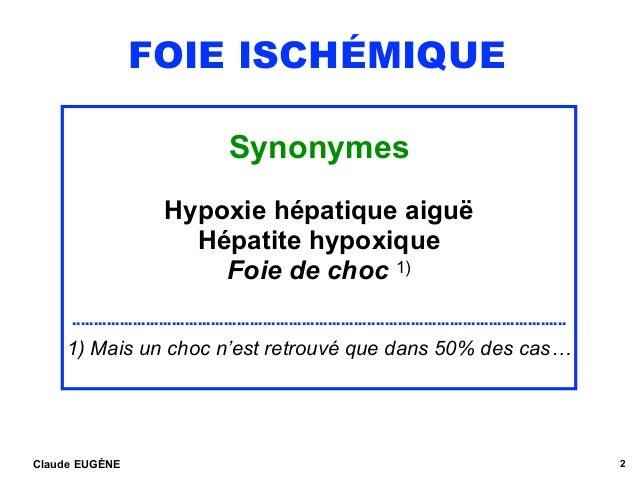 FOIE ISCHÉMIQUE Synonymes Hypoxie hépatique aiguë Hépatite hypoxique Foie de choc 1) …………………………………………………………….…………………………………...