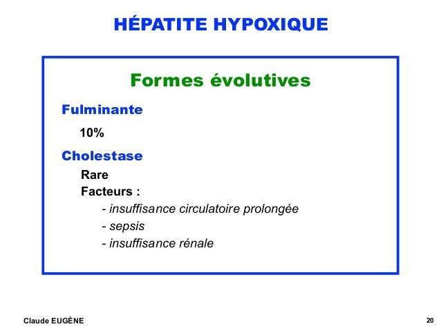 HÉPATITE HYPOXIQUE Formes évolutives Fulminante 10% Cholestase Rare Facteurs :  - insuffisance circulatoire prolongée ...