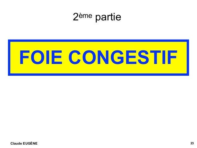 2ème partie FOIE CONGESTIF Claude EUGÈNE 23 .