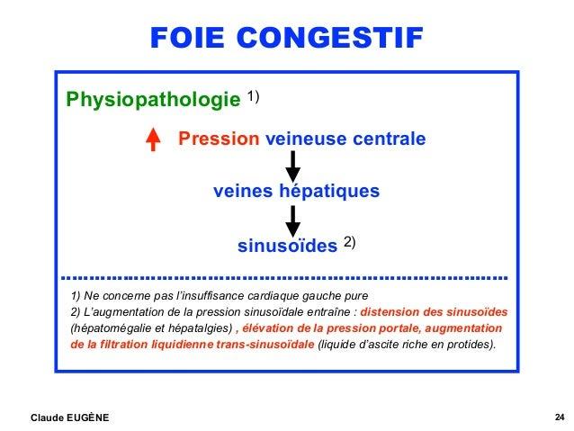 FOIE CONGESTIF Physiopathologie 1) Pression veineuse centrale veines hépatiques sinusoïdes 2) ………………………………………………………………..…....