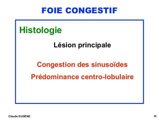 FOIE CONGESTIF Histologie Lésion principale Congestion des sinusoïdes Prédominance centro-lobulaire Claude EUGÈNE 25
