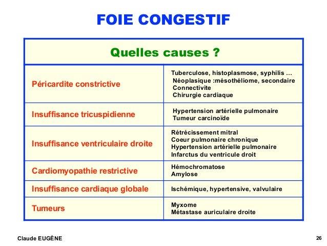 FOIE CONGESTIF Claude EUGÈNE 26 Quelles causes ? Péricardite constrictive Tuberculose, histoplasmose, syphilis … Néoplasiq...