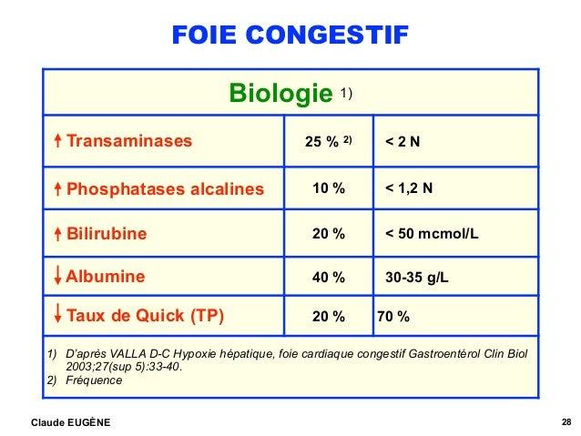 FOIE CONGESTIF Claude EUGÈNE 28 Biologie 1) Transaminases 25 % 2) < 2 N Phosphatases alcalines 10 % < 1,2 N Bilirubine 20 ...