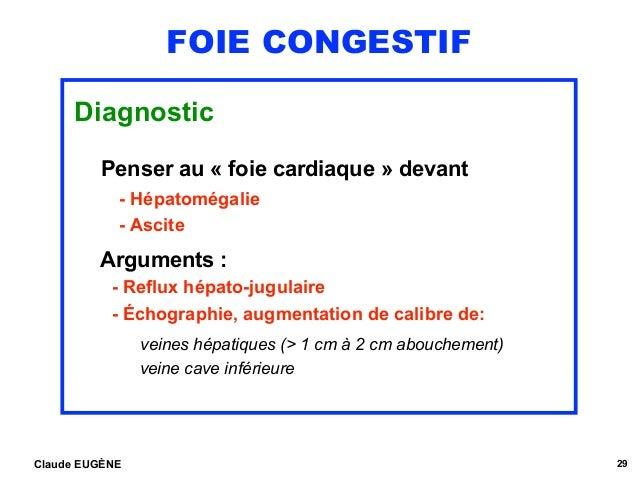 FOIE CONGESTIF Diagnostic Penser au « foie cardiaque » devant - Hépatomégalie - Ascite Arguments : - Reflux hépato-jugul...