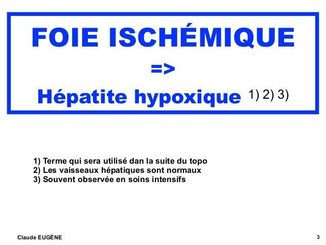 FOIE ISCHÉMIQUE => Hépatite hypoxique 1) 2) 3) 1) Terme qui sera utilisé dan la suite du topo 2) Les vaisseaux hépatiques ...
