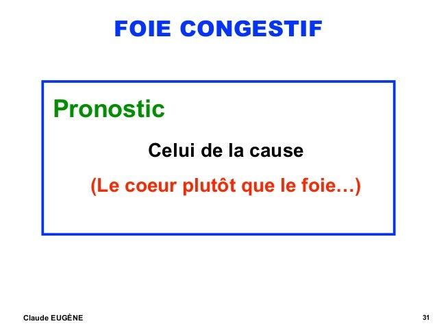 FOIE CONGESTIF Pronostic Celui de la cause (Le coeur plutôt que le foie…) Claude EUGÈNE 31