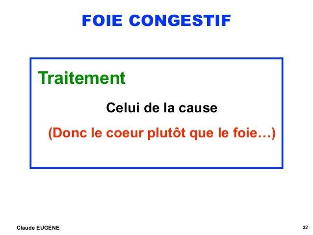 FOIE CONGESTIF Traitement Celui de la cause (Donc le coeur plutôt que le foie…) Claude EUGÈNE 32