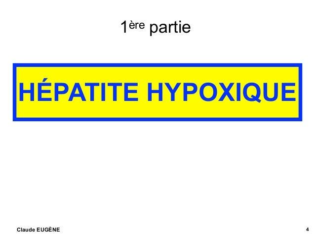 1ère partie HÉPATITE HYPOXIQUE Claude EUGÈNE 4 .