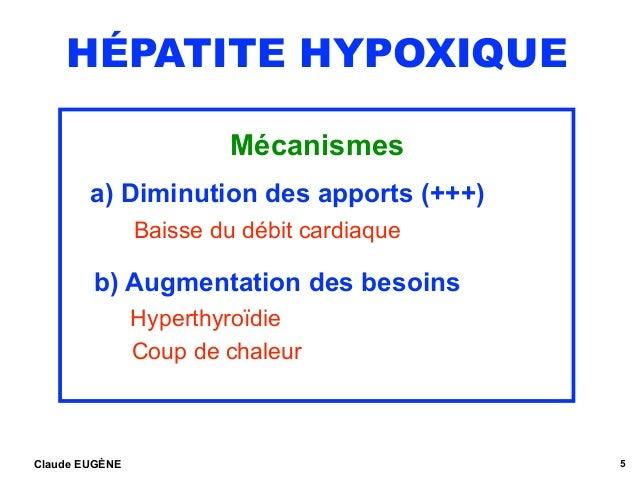 HÉPATITE HYPOXIQUE Mécanismes a) Diminution des apports (+++) Baisse du débit cardiaque b) Augmentation des besoins Hype...