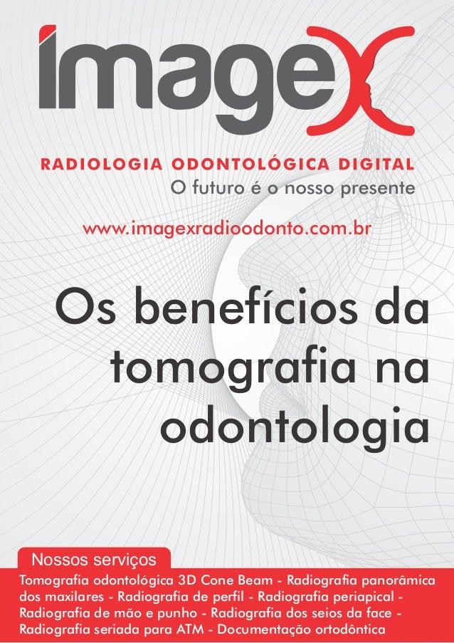 www.imagexradioodonto.com.br     Os benefícios da       tomografia na         odontologia Nossos serviçosTomografia odontol...