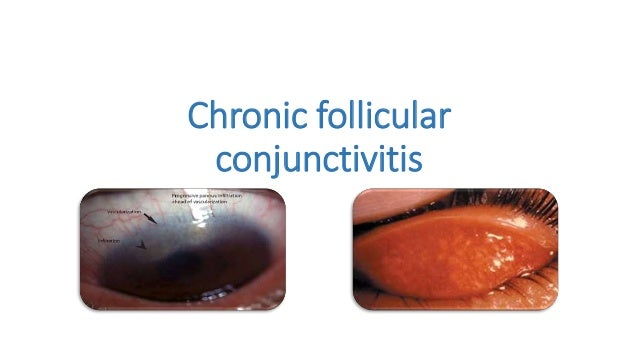 Eye Allergy Drops >> Follicular conjunctivitis (1)