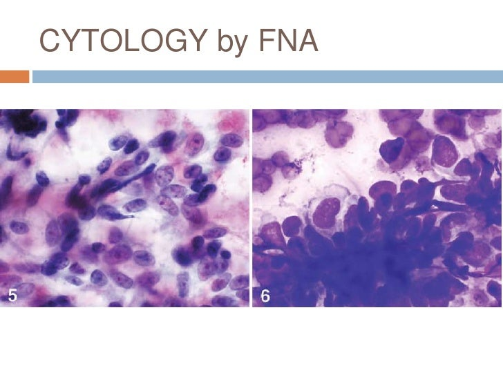 follicular dendritic cell sarcoma You have free access to this content follicular dendritic cell sarcoma clinicopathologic analysis of 17 cases suggesting a malignant potential higher than currently recognized.