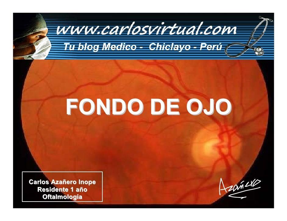 FONDO DE OJO   Carlos Azañero Inope   Residente 1 año     Oftalmología       Dr. Carlos Augusto Azañero Inope