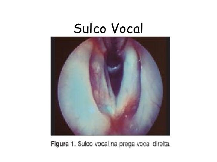 Sulco Vocal