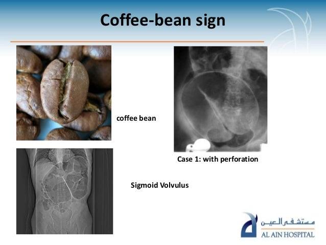 Sigmoid volvulus coffee bean sign