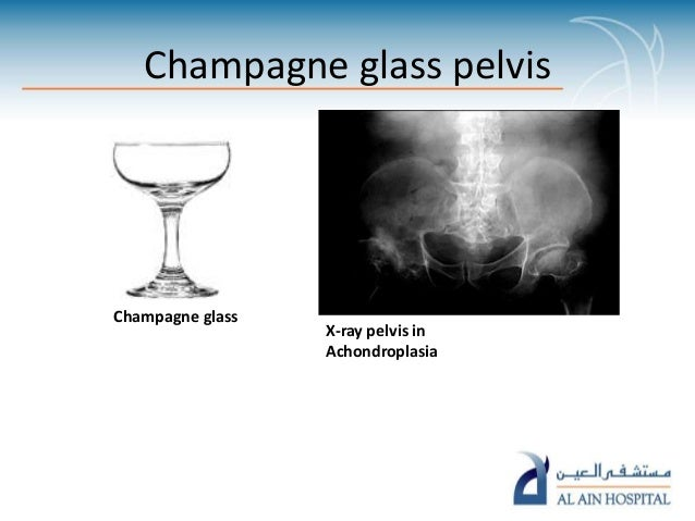 Food signs in radiology pp ta